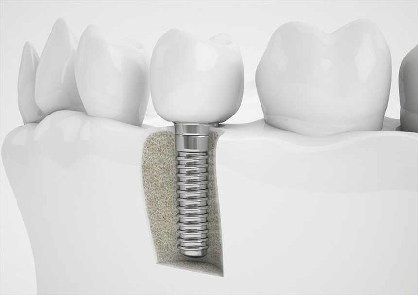 When is the Root Canal Therapy better than a Dental Implants?