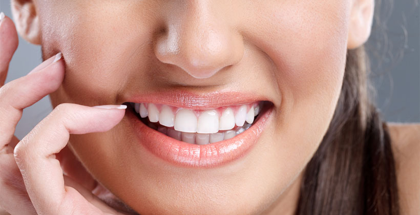 Top reasons why you will need Professional Teeth Whitening!
