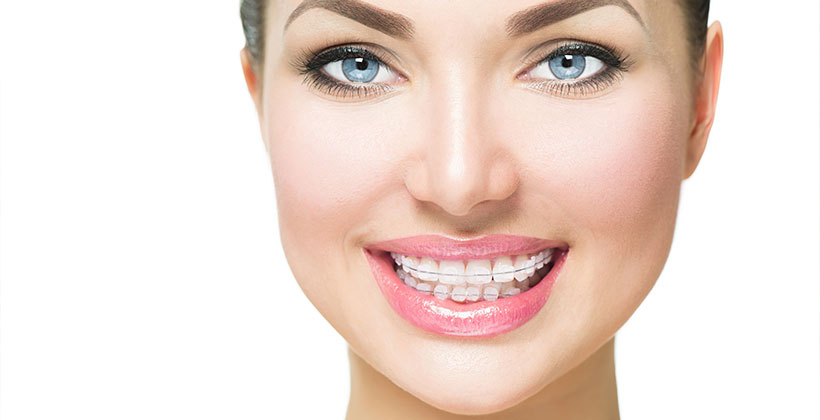 Why Are Invisible Braces the Perfect Choice For Painless Smile Makeovers?