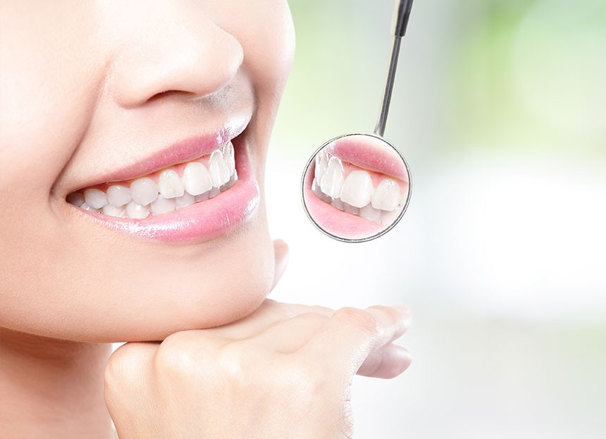 Tips to be followed after the Teeth Whitening Procedure