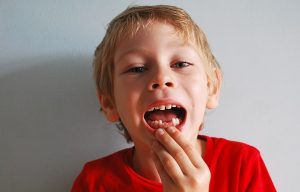 Signs That Indicate You Need Emergency Dental Care