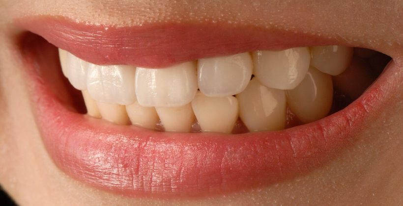 What problems can Porcelain Veneers fix?
