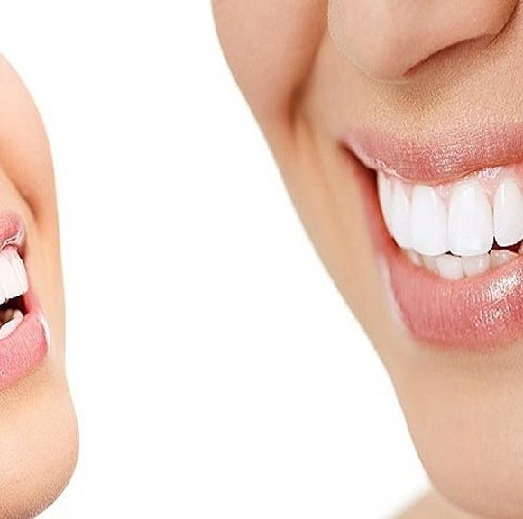 Essential Tips to Choose the Right Cosmetic Dentist