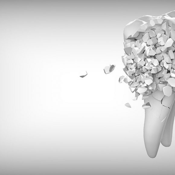 How Do You Know If You Have A Crack In Your Tooth?