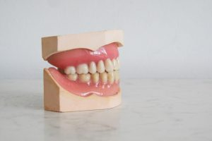 How to Improve a Gummy Smile?