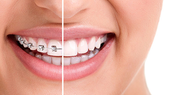 5 Ways Invisible Braces are Better than Metal Braces