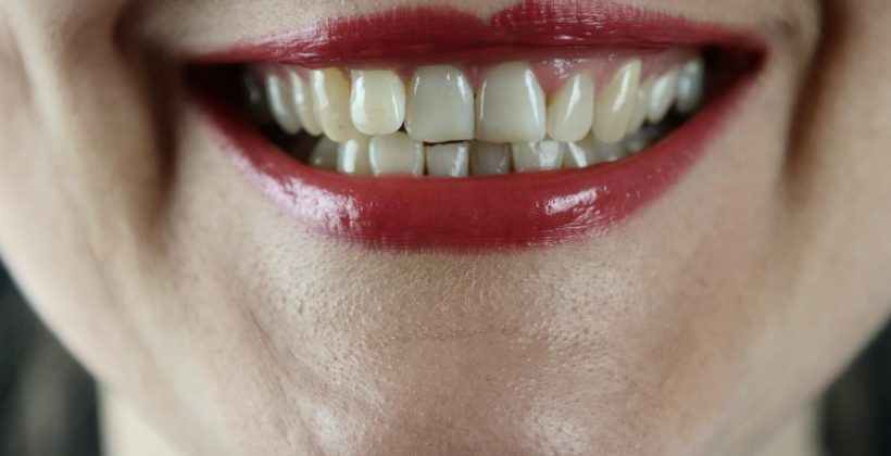 Teeth Whitening After a Root Canal Treatment – What You Ought to Know