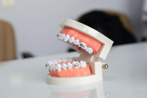 Getting Braces for Impacted Teeth