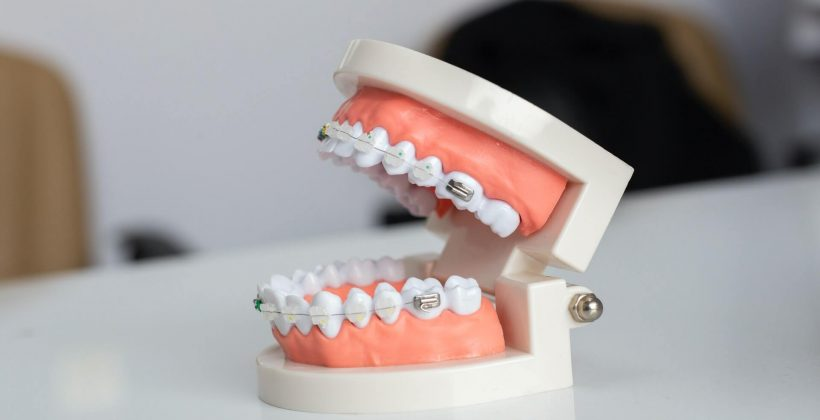 Getting Braces for Impacted Teeth – Will It Work?